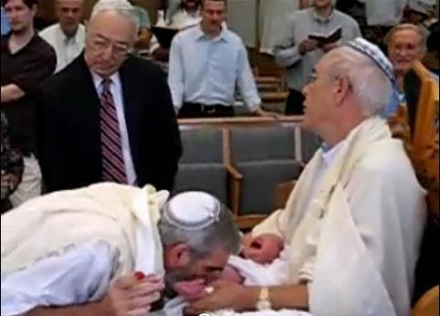 A Mohel (Rabbi) sucks the blood from a babies penis after circumsizing it at 8 days of age